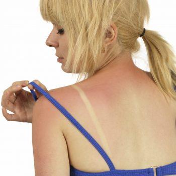 Sonnenschutz durch Aroniabeeren